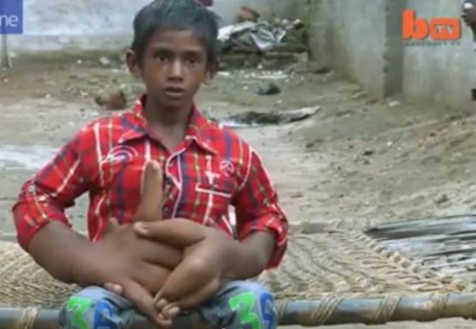 Indiase jongen heeft enorme handen van 12 kilogram (video)