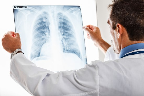 Longkanker wordt nog vaak te laat vastgesteld