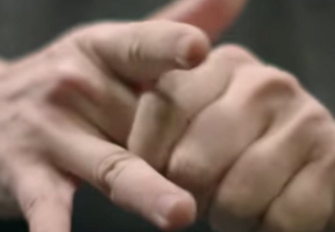 Zo gevaarlijk is je vingerkootjes kraken echt