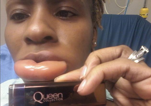 Lippenstift wordt vrouw bijna fataal