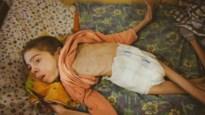 Zwaar verwaarloosde kinderen op de rand van de hongerdood ontdekt in weeshuizen