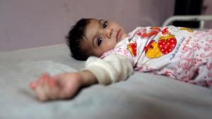 Vicieuze cirkel van oorlog, armoede en cholera: 2 miljoen kinderen in Jemen acuut ondervoed