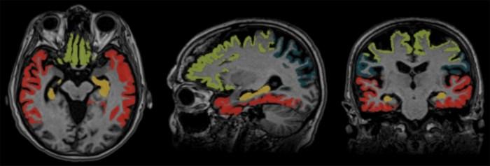 UZ Antwerpen werkt mee aan nieuwe techniek: scan moet alzheimer vroeger opsporen