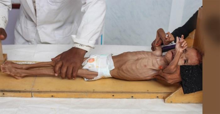 VN zien geen uitweg meer voor conflict: vijf miljoen kinderen riskeren hongerdood
