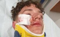 """15-jarige Lennert slachtoffer van zinloos geweld tijdens fuif: """"Met vijf tegen één, echt een laffe daad"""""""