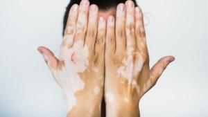 Nederlandse fotografe brengt mensen met huidziekte vitiligo in beeld