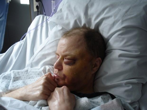 Internering voor verpleger die comapatiënt sloeg