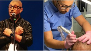 Van komiek naar kliniek: Youssef El Mousaoui behandelt kaalheid met haartattoos