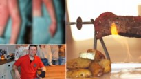 "Slachtoffer getuigt na drie huidtransplantaties: ""Verbied cowboysteak"""