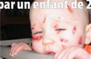 Kind van 2 martelt baby van 10 maanden in crèche