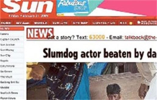 Kindsterretje uit 'Slumdog Millionaire' krijgt rake klappen van vader