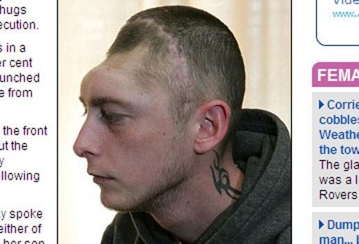 Gruwelijk: Jongeren slaan halve schedel man weg