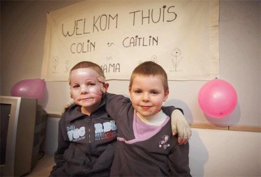 Colin (6) en Caitlin (5) genezen goed van brandwonden na gasontploffing