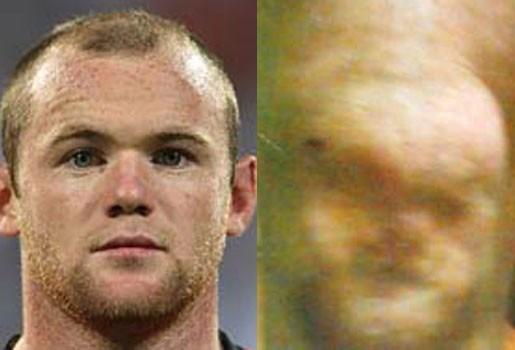 Gezicht Wayne Rooney verschijnt in opgezwollen knie