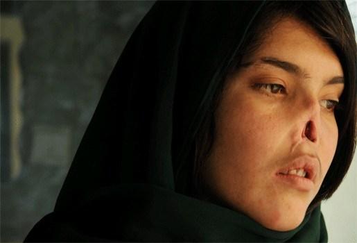 Verminkte Afghaanse krijgt nieuwe neus