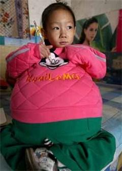 Buik van Chinees meisje (4) blijft maar groeien
