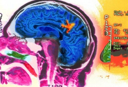 Verkeerde communicatie tussen hersencellen kan tot hersenziektes leiden