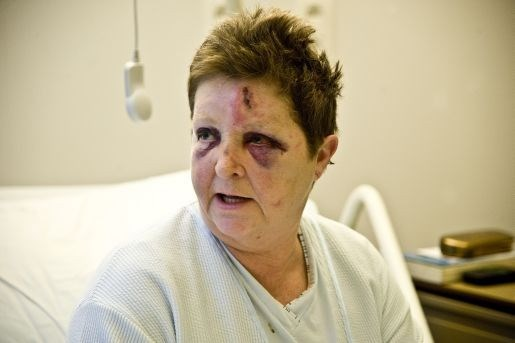 Slachtoffer brutale aanval opnieuw in het ziekenhuis