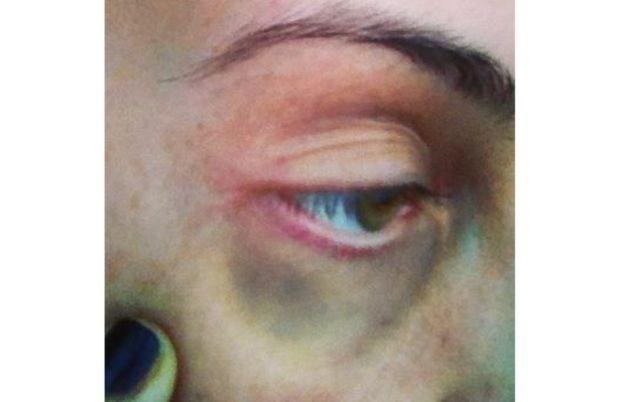 Anouk toont blauw oog na partijtje kickboksen