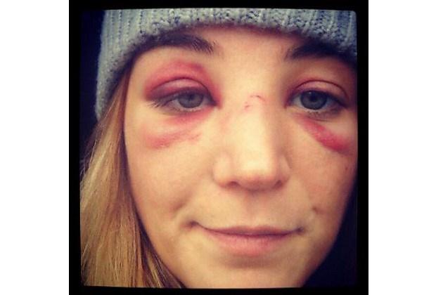Blauwe ogen en gebroken neus na bezoek aan dancing