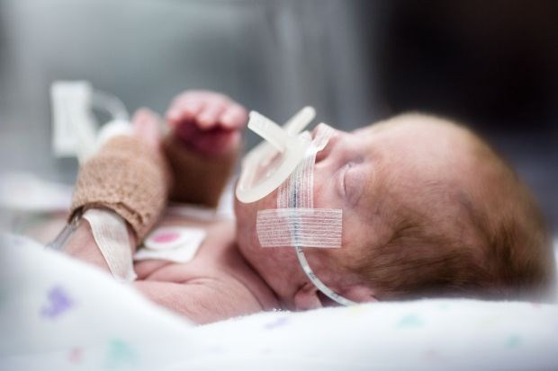 UZ Gent heeft als eerste piepklein dialysetoestel voor baby's